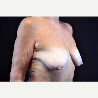 55-64 year old woman treated with Breast Lift with Implants; 5 months post-op before 2675433