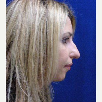 25-34 year old woman treated with Rhinoplasty before 3687015