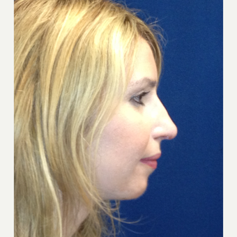 25-34 year old woman treated with Rhinoplasty after 3687015