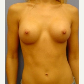 25-34 year old woman treated with Breast Augmentation after 1574744