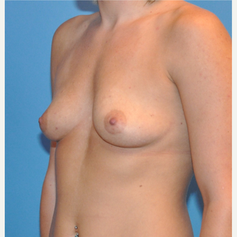 Breast Augmentation before 3377425