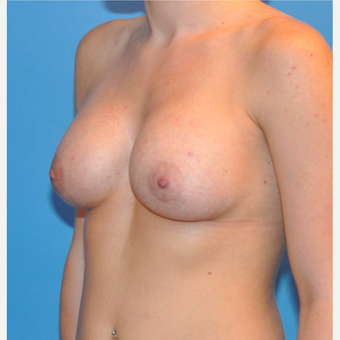 Breast Augmentation after 3377425