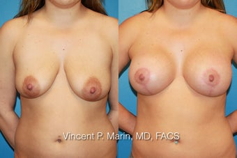 Breast Augmentation and Lift before 990831
