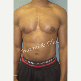 35-44 year old body builder treated with Male Breast Reduction (Gynecomastia surgery) after 3327253