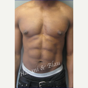 35-44 year old body builder treated with Male Breast Reduction (Gynecomastia surgery) before 3327253