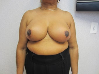 55 year old woman with gigantomastia after 997669