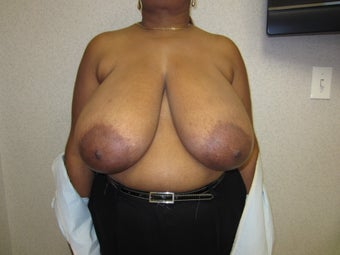 55 year old woman with gigantomastia before 997669