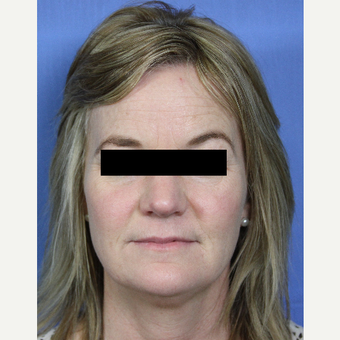 45-54 year old woman treated with Voluma, Juvederm, Botox, Kybella and ZO skin care products before 3215302