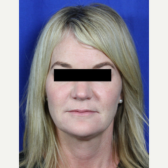 45-54 year old woman treated with Voluma, Juvederm, Botox, Kybella and ZO skin care products after 3215302