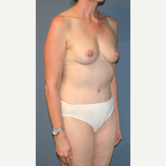 55-64 year old woman treated with Breast Lift after 3454391