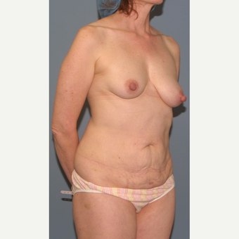55-64 year old woman treated with Breast Lift before 3454391