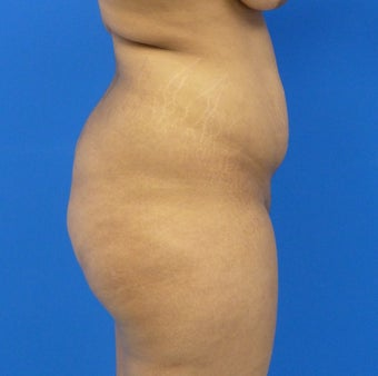 27 y.o. female – Liposuction of abdomen, flanks, and back with fat transfer to buttocks & hips– 1300cc per side 1440558