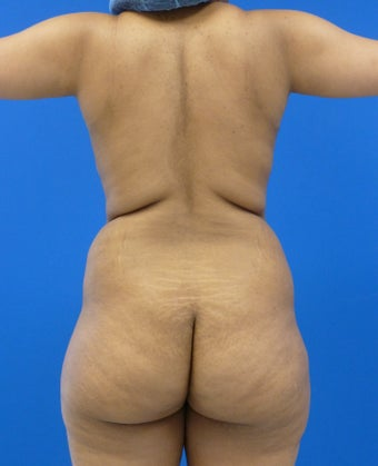 27 y.o. female – Liposuction of abdomen, flanks, and back with fat transfer to buttocks & hips– 1300cc per side before 1440558