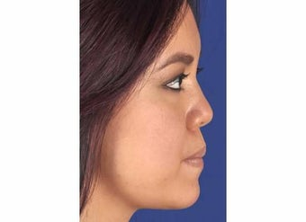 Chin Enhancement after 1357229
