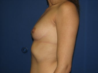 Breast Augmentation before 575666