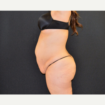 This woman underwent tummy tuck, she is shown just 6 months post before 3482518