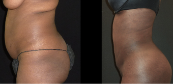 25-34 year old woman treated with Liposuction before 3717667