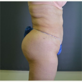 45-54 year old woman treated with Brazilian Butt Lift after 1540213