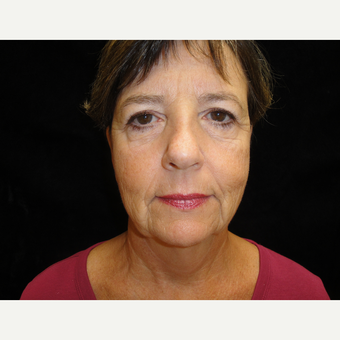 55-64 year old woman treated with Facelift before 3823308