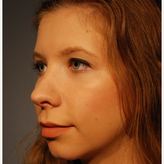 18-24 year old woman treated with Rhinoplasty after 3064866