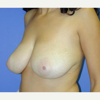 Breast Reduction before 3241630