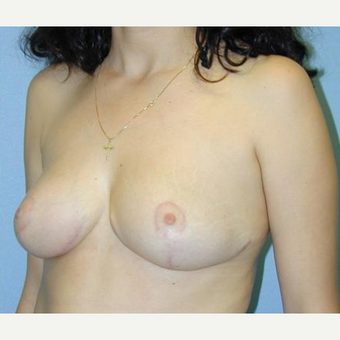 Breast Reduction after 3241630
