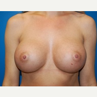 5'9 138lbs 460cc ultra high profile breast implants after 3370925