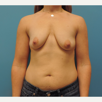 25-34 year old woman treated with Breast Lift with Implants before 3578208