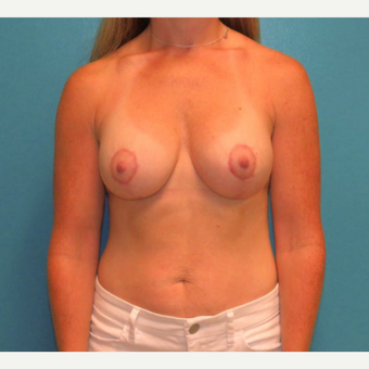25-34 year old woman treated with Breast Lift with Implants after 3578208