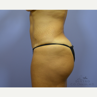 45-54 year old woman treated with Tummy Tuck Revision before 3421812