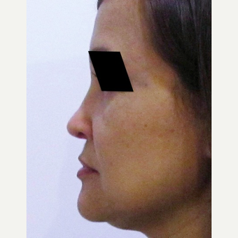40 year old woman treated with Rhinoplasty after 3438015