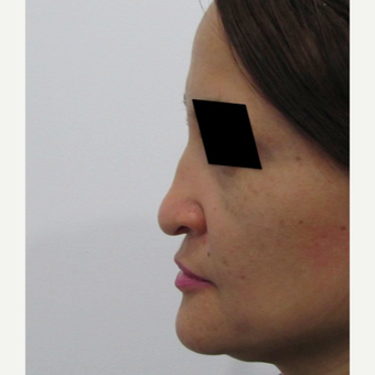 40 year old woman treated with Rhinoplasty before 3438015