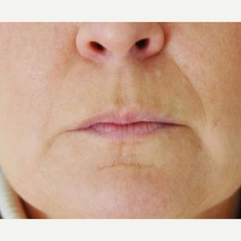45-54 year old woman treated with Skin Rejuvenation