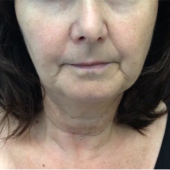 65-74 year old woman treated with Kybella before 3524346