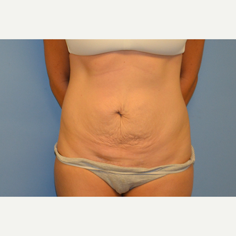 35 year old woman with Tummy Tuck before 3088762