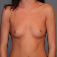 25-34 year old woman treated with Breast Implants before 3299871