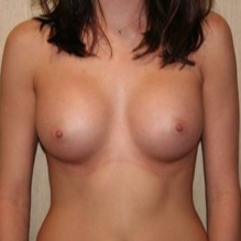 25-34 year old woman treated with Breast Implants after 3299871