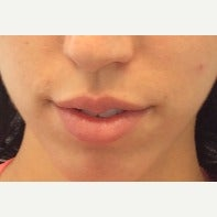 25-34 year old woman treated with Lip Augmentation before 2556462