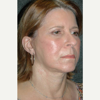 63 year old woman treated with Facelift after 3710758