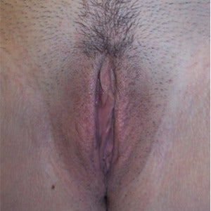Labiaplasty after 2203877