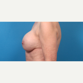 55-64 year old woman treated with Breast Implant Revision before 3340117