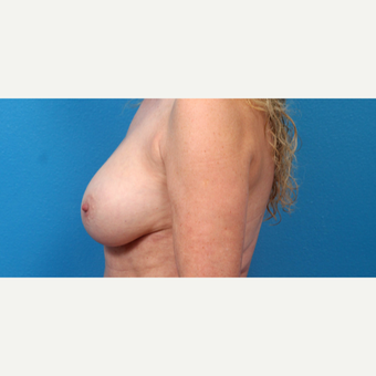 55-64 year old woman treated with Breast Implant Revision after 3340117