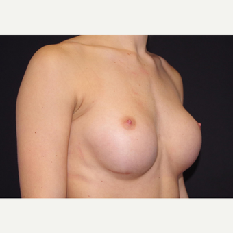 18-24 year old woman treated with Breast Implants before 3440885