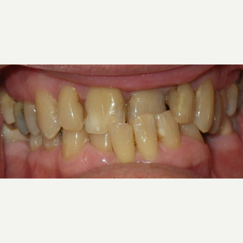 65-74 year old man treated with Damon Braces before 2262391