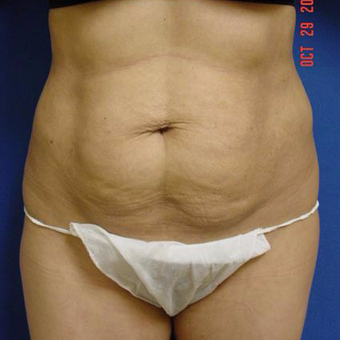 25-34 year old woman treated with Liposuction before 3285147