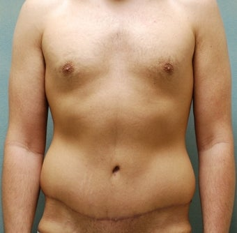 Abdominoplasty after 325735