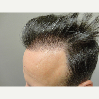 45-54 year old man treated with Hair Transplant before 3714787