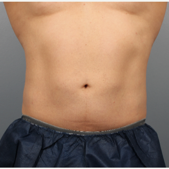 44 year old man treated with CoolSculpting of the Abdomen and Flanks after 3507470