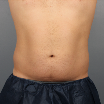 44 year old man treated with CoolSculpting of the Abdomen and Flanks before 3507470