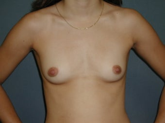 Breast Augmentation before 672894